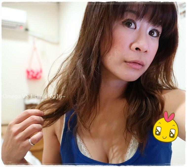 【醫美】歐美加要逆齡!!填補淚溝+蘋果肌初體驗